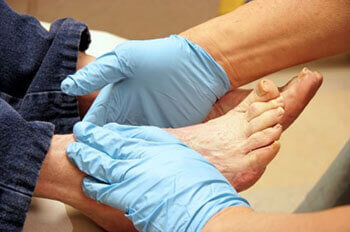 diabetic foot treatment in the Dallas, TX 75231, Athens, TX 75751 and Gun Barrel City, TX 75156 area