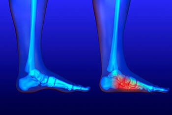 Flat feet and Fallen Arches treatment in the Dallas, TX 75231, Athens, TX 75751 and Gun Barrel City, TX 75156 area
