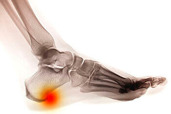 Heel spurs treatment in Dallas, TX 75231, Athens, TX 75751 and Gun Barrel City, TX 75156 area