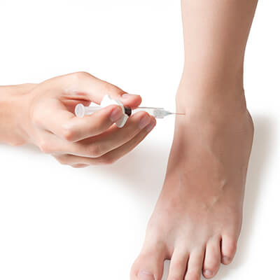 medicastemcells - stem cell therapy for foot pain