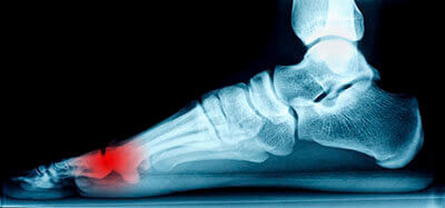 mortons neuroma treatment in the Dallas, TX 75231, Athens, TX 75751 and Gun Barrel City, TX 75156 area