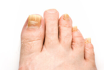 fungus toenails treatment in the Dallas, TX 75231, Athens, TX 75751 and Gun Barrel City, TX 75156 area