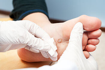 Plantar warts treatment in the Dallas, TX 75231, Athens, TX 75751 and Gun Barrel City, TX 75156 area